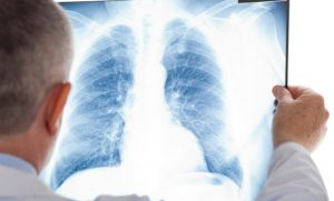 Image Asbestos Definition Medical