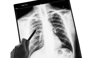Image What is Asbestosis
