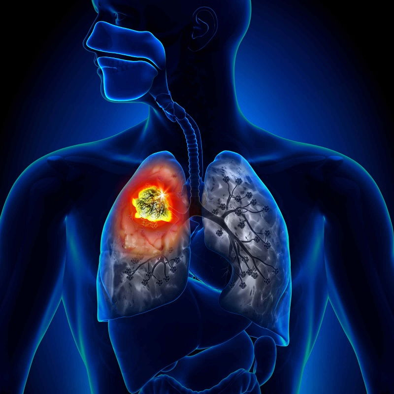 Mesothelioma Pictures