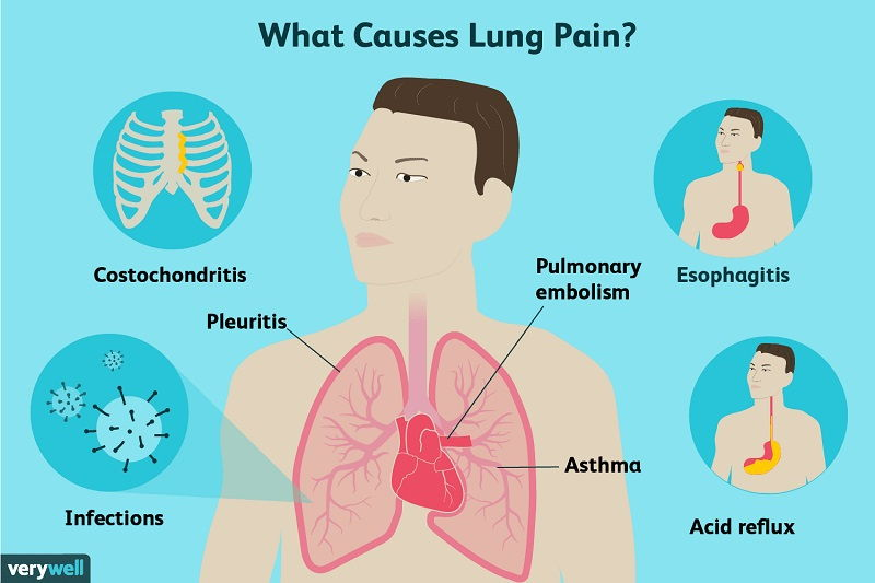 mesothelioma symptoms mayo clinic