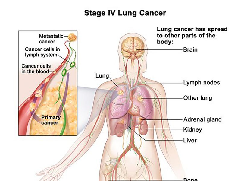 how long can you live with stage 4 cancer