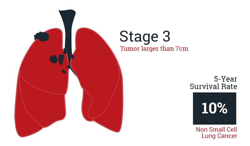 Asbestos Cancer in The Lungs