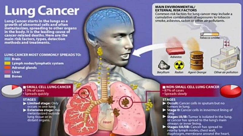 Lung Cancer and Asbestos