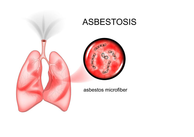 Asbestos in Lungs Life Expectancy
