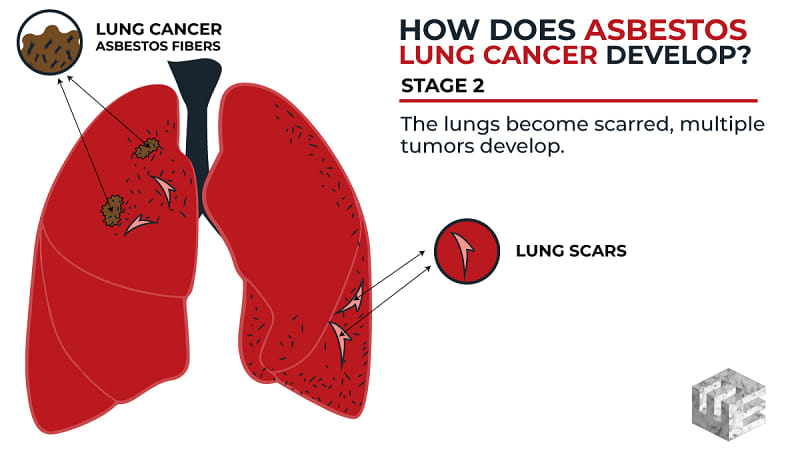 Asbestos on The Lungs Symptoms