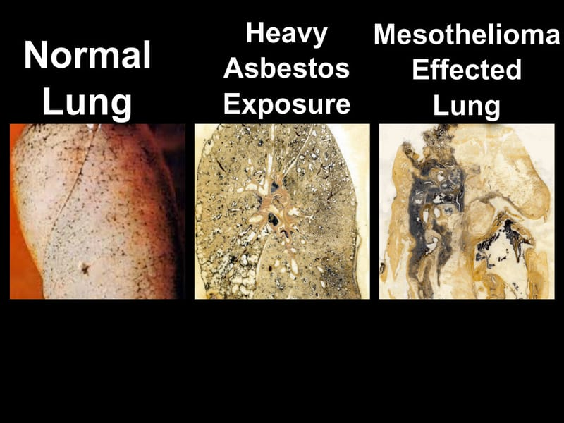 Asbestos on The Lungs