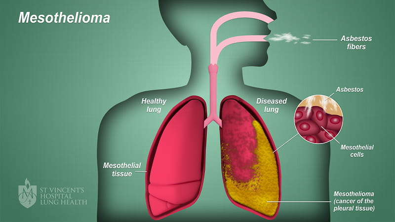Mesothelioma Cancer Effects